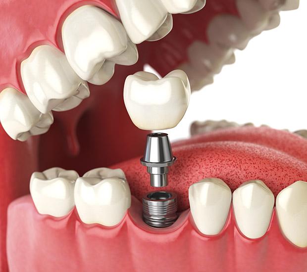 Laguna Hills Will I Need a Bone Graft for Dental Implants