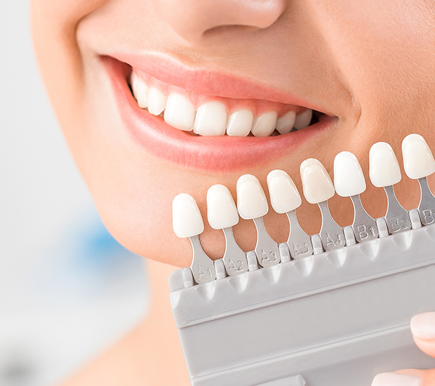 Laguna Hills Dental Veneers and Dental Laminates