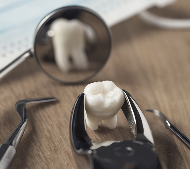 Laguna Hills When Is a Tooth Extraction Necessary